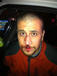 George-Zimmerman-injury